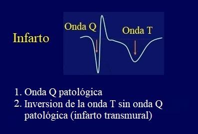 infarto, ecg, onda Q, onda T