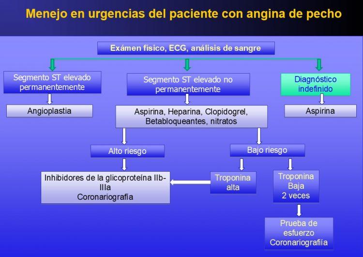angina, diagnóstico, urgencias