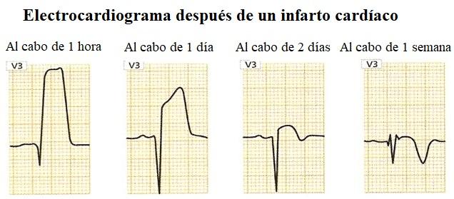 onda Q, infarto, variaciones, ECG