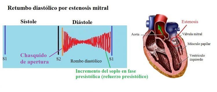 soplo diastólico, estenosis mitral