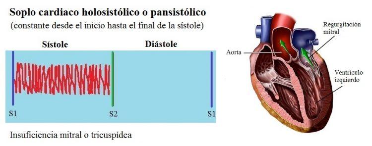 soplo, insuficiencia mitral, pansistólica