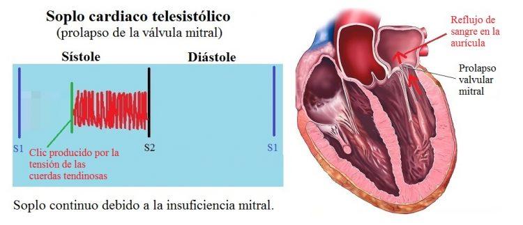 soplo telesistólico, prolapso válvula mitral
