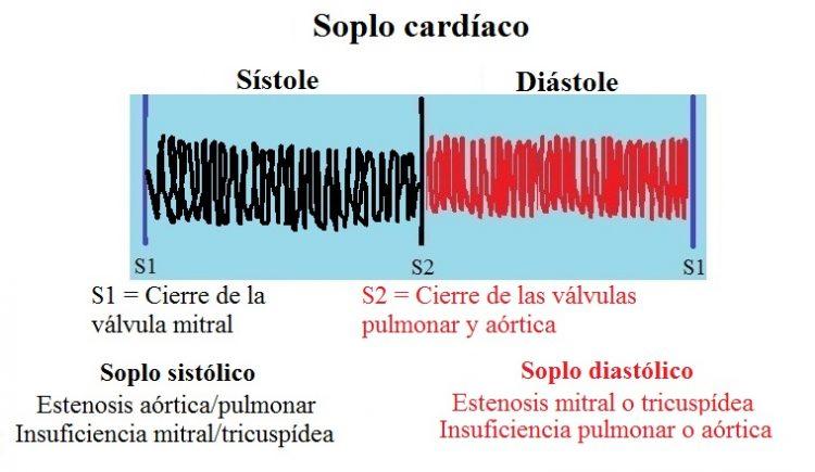 soplo en el corazón, sistólico, diastólico