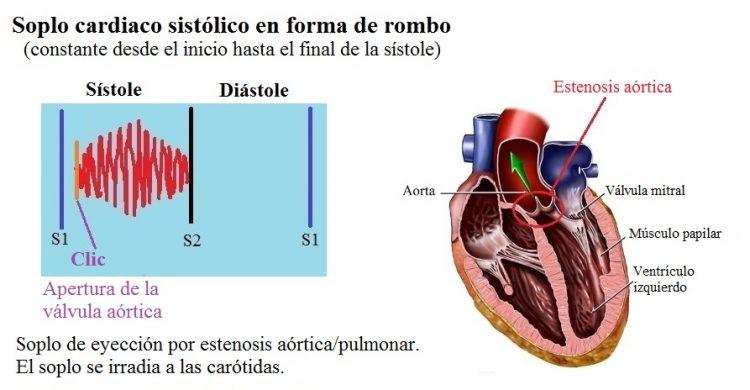 soplo sistólico, rombo, estenosis aórtica