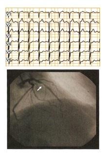 estenosis arteria coronaria descemdente anterior izquierda