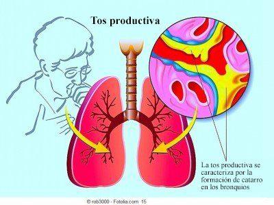 tos productiva