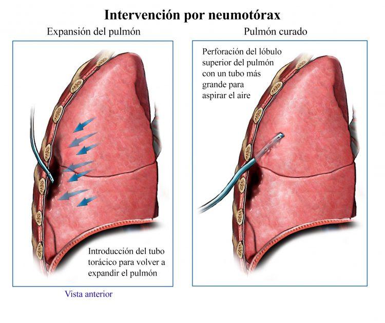cirugía de neumotórax
