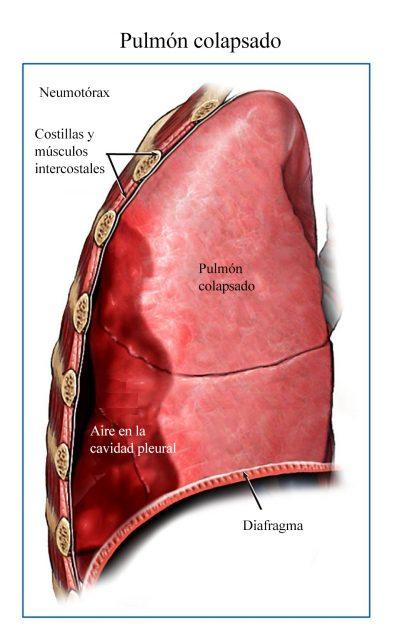 pneumotñorax, pulmón, colapso