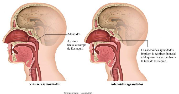 Adenoides en los niños, vegetaciones, adenoiditis, sintomas y ...