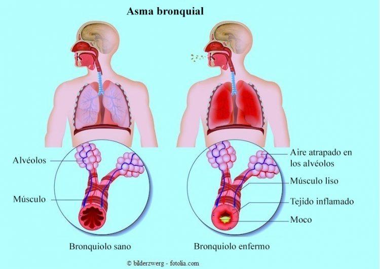 Asma bronquial, alérgica, tratamiento, Ventolin, inhalador, remedios ...