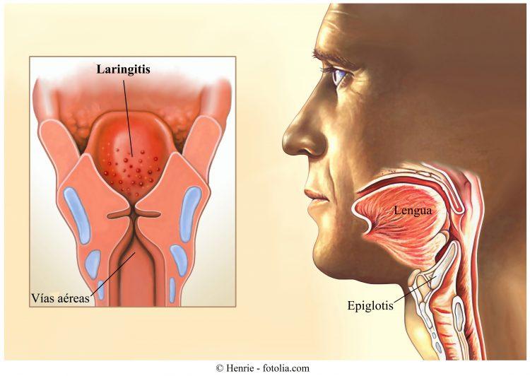 laringitis, inflamación