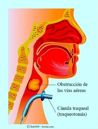 traqueotomía, obstrucción de las vías respiratorias