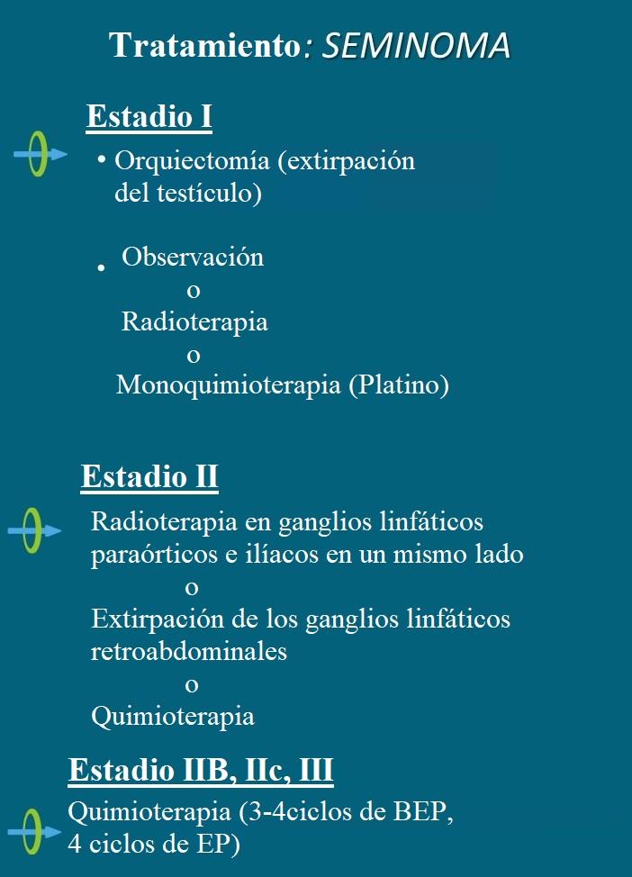 tratamiento, seminoma, quimioterapia, radioterapia