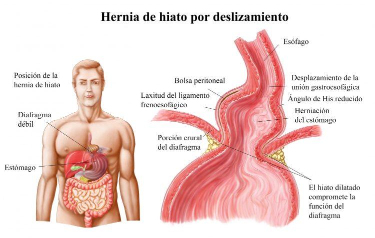 hernia hiatal, delizamiento, estómago, diafragma