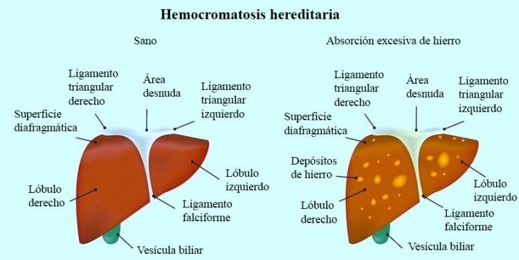Hemocromatosis hereditaria, hierro