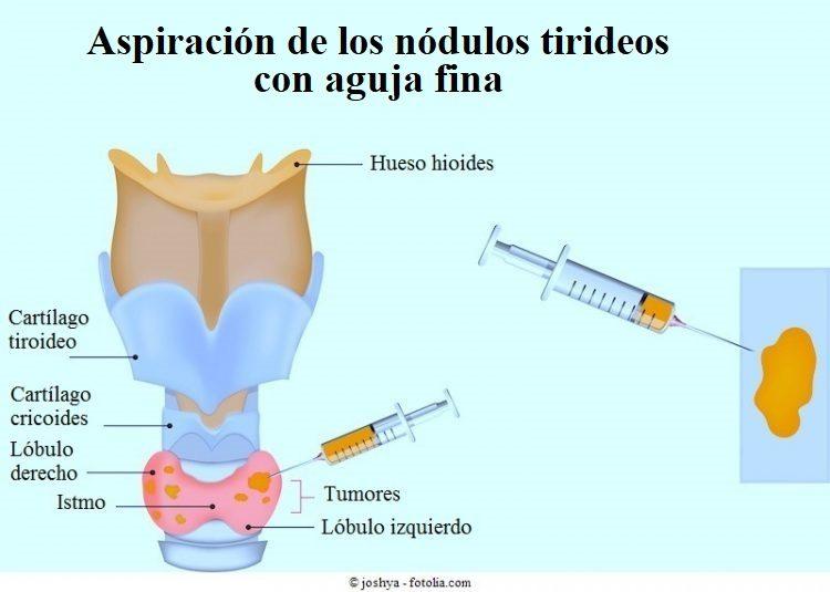 nódulos en la tiroides