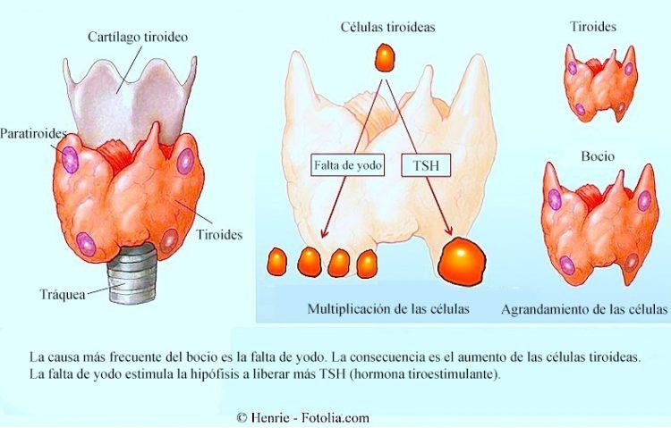 tiroides, bocio, TSH