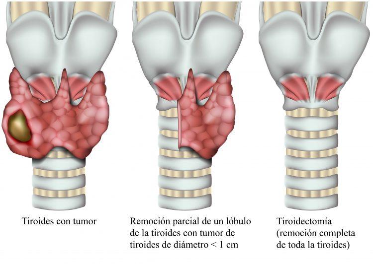 tiroidectomía, cirugía, tiroides