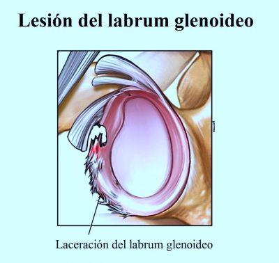 lesión del labbro glenoideo