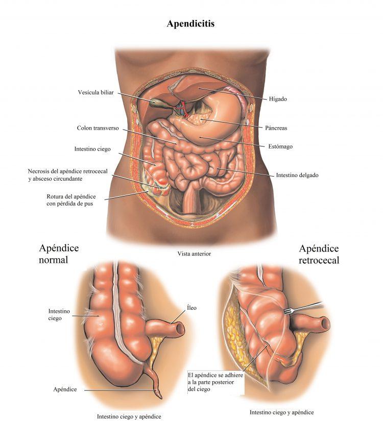 apendicitis retrocecal, infección, absceso