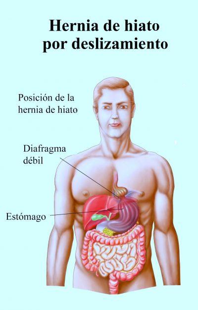 hernia hiatal, estómago