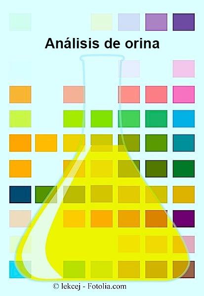 exámenes de orina, análisis, completa