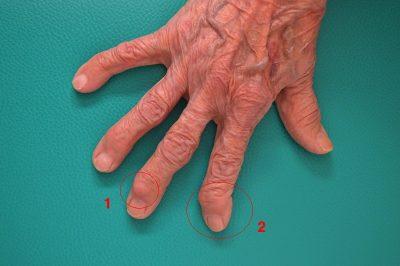 artrosis-dedos