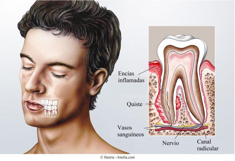 quistes, dientes