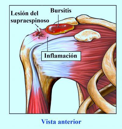 lesión del supraespinoso